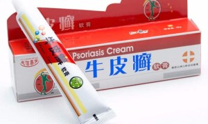 Китайская мазь от псориаза — обзор популярных средств