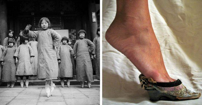 Бинтование ног у женщин